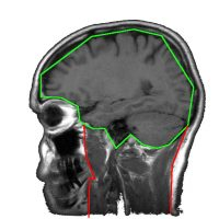 We supported a large American medical group developing machine learning technology to automatically segment 3D MRI images into individual organs. We helped to architect and implement a solution that converted experimental scientific work into practical, scalable, production-ready software.